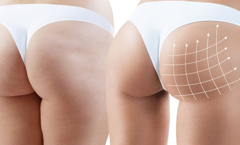 Photo of 5 Interesting Facts about Brazilian Butt Lifts