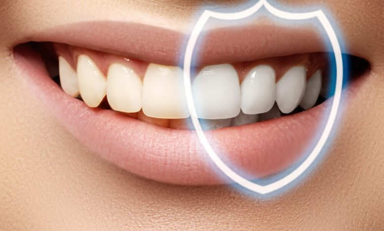 Photo of What to Expect When Getting Teeth Bonding