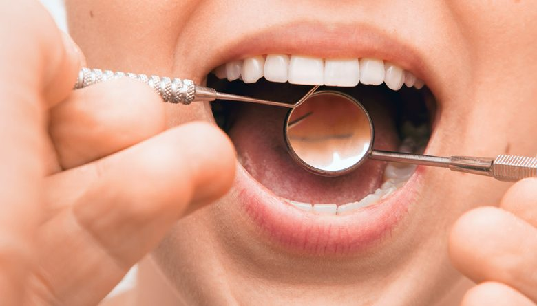Photo of How Does Periodontitis Develop?