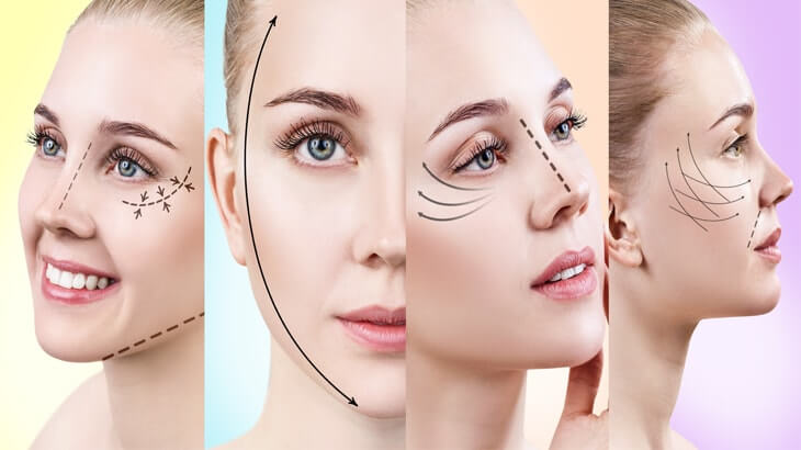 Photo of What You Ought to Know About Facelift Surgery