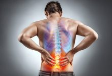 Photo of 5 Lifestyle Changes to Help Improve Sciatica Pain