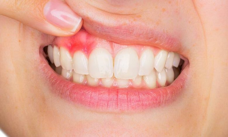 Photo of How to deal with periodontitis