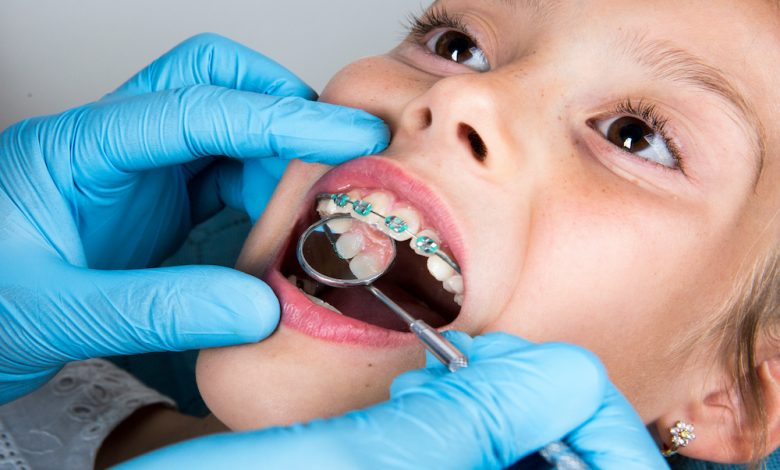 Photo of When to Choose Braces for Your Orthodontic Treatment