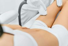Photo of A Trusted Laser Hair Removal Specialist in Memphis