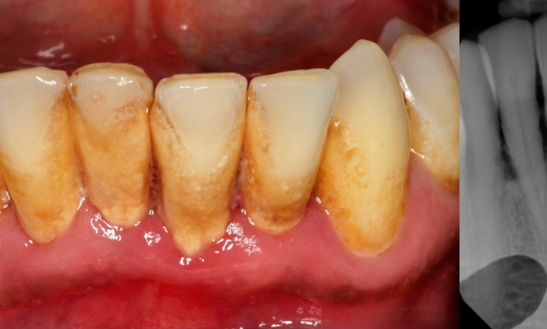 Photo of Prevention and Treatment of Periodontal Disease