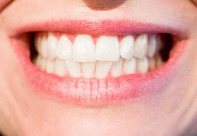 Photo of Smile Enhancement Through Teeth Whitening