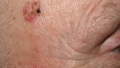 Photo of Effective Skin Cancer Detection and Treatment in Glen Allen, VA