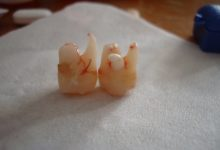 Photo of Why You Should Remove Impacted Wisdom Teeth